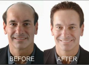 Non-surgical hair replacement system